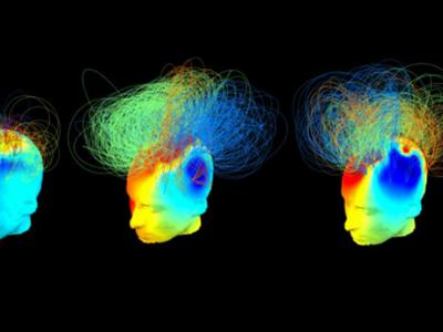Новый алгоритм поможет обнаружить сознание у пациентов в коме